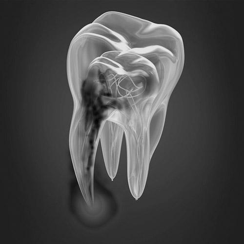 caries y endodoncia AAS