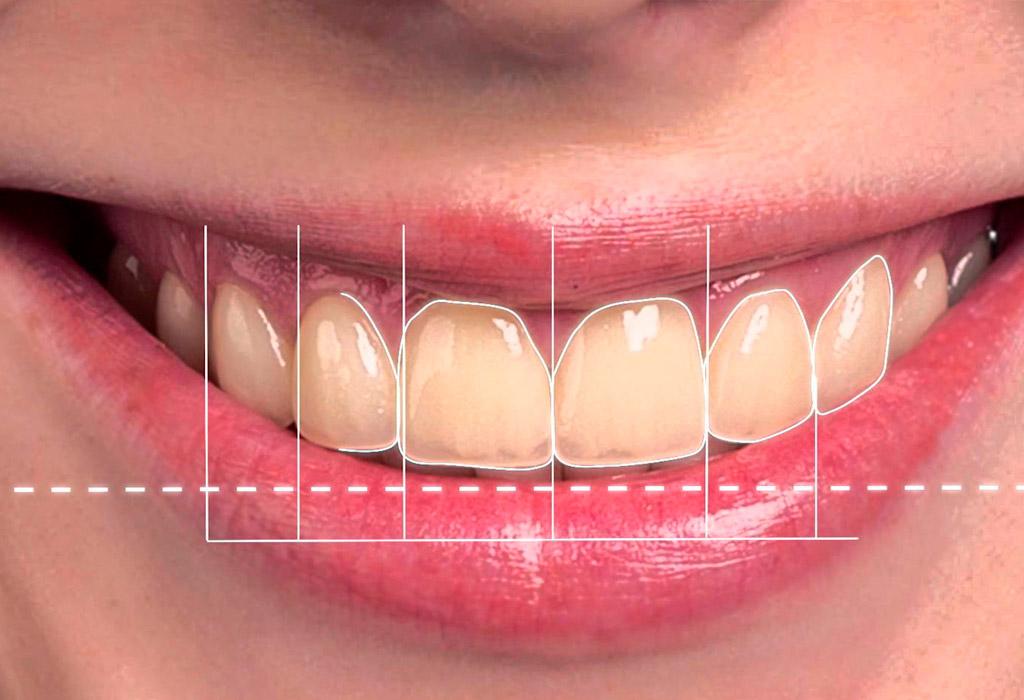 carillas dentales Barberà