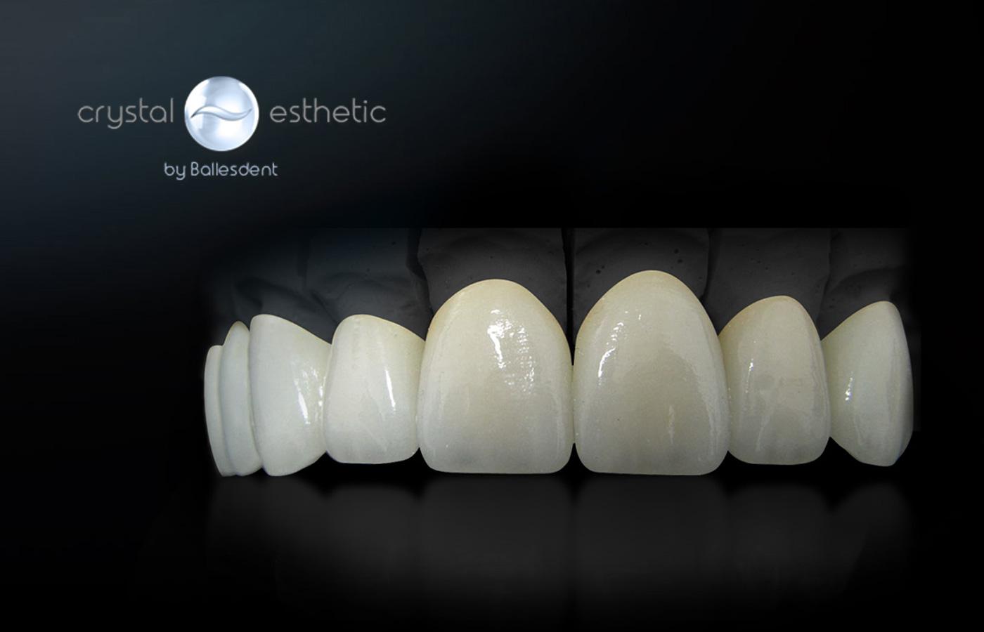 estética dental Barberà