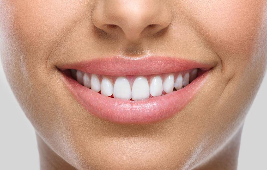 Estética dental en Badal