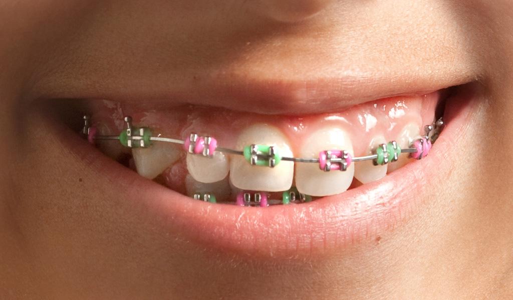 ortodoncia en Barberà