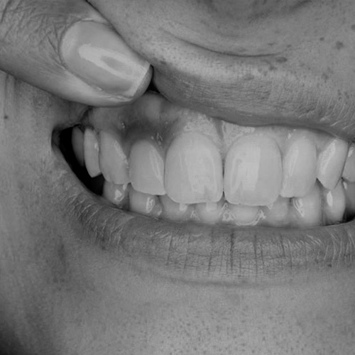 periodoncia AAS
